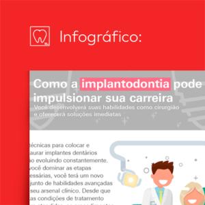 Infográfico – como a implantodontia pode impulsionar